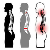 Human spine silhouettes — Stock Vector