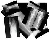 Human leg bone X-rays — Stock Photo