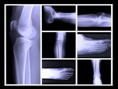 Human leg bone X-rays — Stock Photo