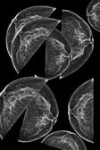 Lateral mammogram of female breast — Stock Photo