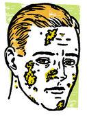 Ilustracja zarażonego człowieka — Zdjęcie stockowe