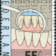 NETHERLANDS - CIRCA 1977: A stamp printed in the Netherlands, is dedicated to the 100th anniversary of the teaching of dentists, is shown Teeth, Mirror of Dentist, c — Stock Photo #12427718
