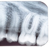 Tooth x-ray. — Stock Photo