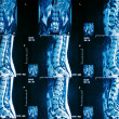 CT scan or mri of lower back — Stock Photo