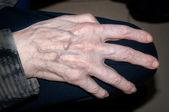 Hands of elderly person — Stock Photo