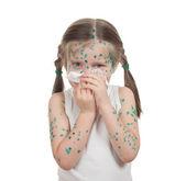Sick child. chickenpox — Stock Photo