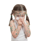 Sick child. chickenpox — Foto Stock