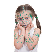 Acnes on child. chickenpox — Foto Stock