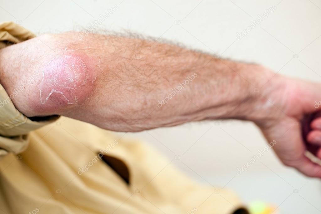 Хламидиоз у мужчин фото лечение