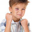 Boy with bruise — Stock Photo #36620245