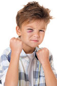 Boy with bruise — Stock Photo