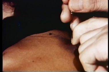 Primer plano de mano agujas de acupuntura en la piel — Vídeo de stock