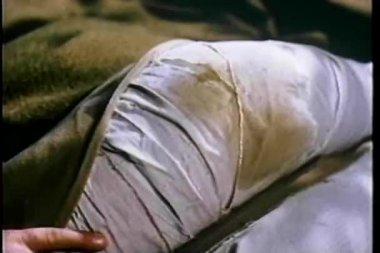 Close-up of hand touching bandaged leg — Stock Video