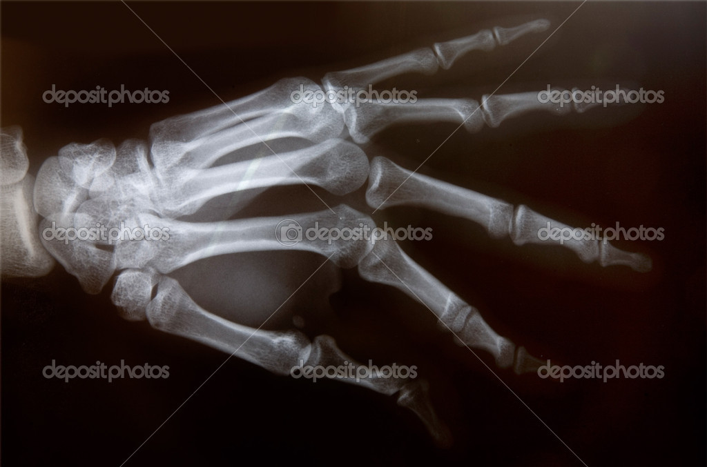 Detail of an x-ray of a hand  Stock Photo #13379353