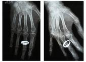 Vrickat fingret, två prognoser, röntgen. Ring på fingret — Stockfoto