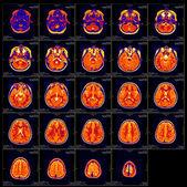 Real brain MRI slide of a girl — Stock Photo
