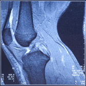 My knee MRI - damage of cross-shaped ligaments — Stock Photo