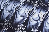 My knee MRI - damage of cross-shaped ligaments — Stock Photo