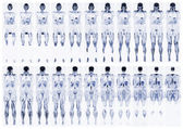 Scan the human body — Stock Photo