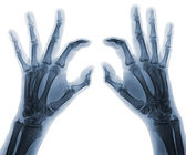 X-ray hands — Stock Photo
