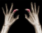 X-ray of hands — 图库照片