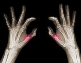 X-ray of hands — Stock Photo