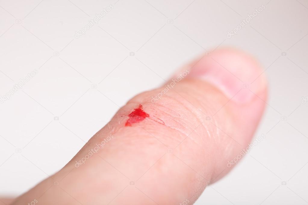 фото порезы рук