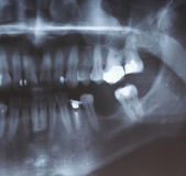 X-ray scan of humans teeth — Stock Photo