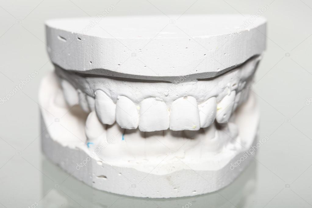 Dental Gypsum Plaster : Dental gypsum model mould of teeth in plaster — stock