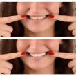 Постер, плакат: Before yellow teeth with gap and after white teeth and no gap