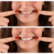 Stock Photo: Perfect teeth with gap, after bleaching teeth treatment.
