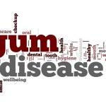 Gum disease word cloud — Stockfoto