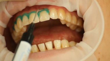 Teeth Whitening. Insulation gel soft tissue. stomatology — Stock Video