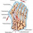 Hallux valgus  - pathogenic mechanism, lateral deviation of the first ray with subluxation of the metatarsophalangeal joint — Foto Stock