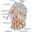 Hallux valgus  - pathogenic mechanism, lateral deviation of the first ray with subluxation of the metatarsophalangeal joint — Photo