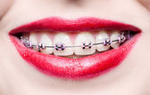 Teeth with braces — Stock Photo