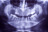 Buccal x-ray — Stock Photo