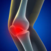 Knee Pain — Stock Photo