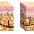 Cellulite cross section — Stock Photo