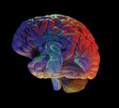 Brain on black — Stock Photo
