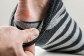 Man with a blister on his heel — Stock Photo