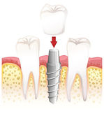 Dental crown procedure — Stockvektor
