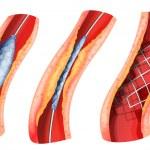 stent som används för att öppna blockerad artär — Stockvektor