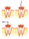 Endodoncia dental — Vector de stock