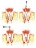 Endodoncia dental — Vector de stock
