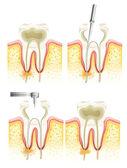 Proceso de endodoncia — Vector de stock