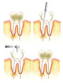 Root canal process — Stockvektor