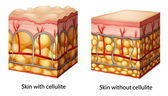 Cellulite — Vettoriale Stock