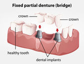 Fixed partial denture bridge — Stockvektor