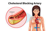 Illustration showing the process of ateriosclerosis — Stock Vector